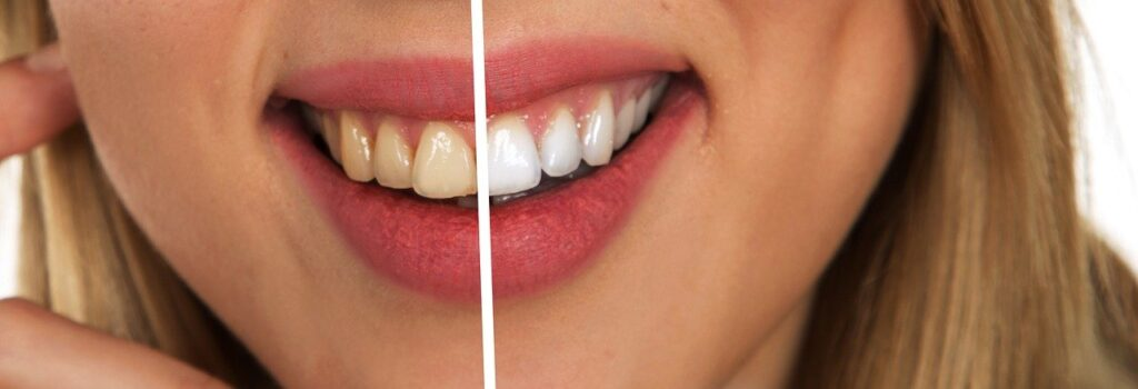 Do you brush your teeth after whitening strips